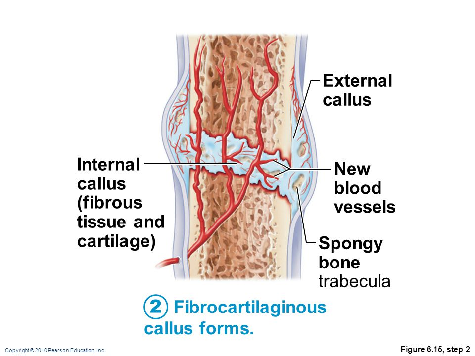 2 External callus Internal callus (fibrous tissue and cartilage)