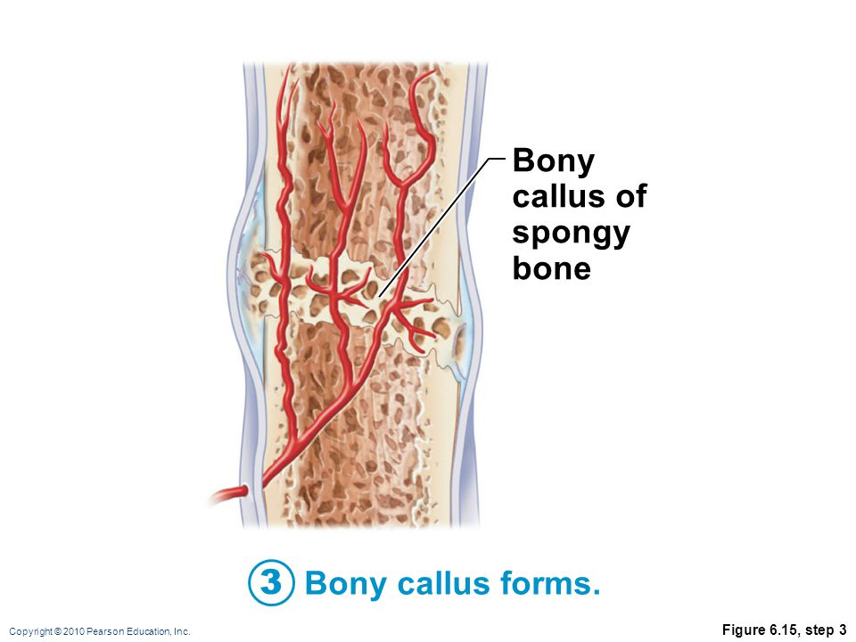 Bony callus of spongy bone