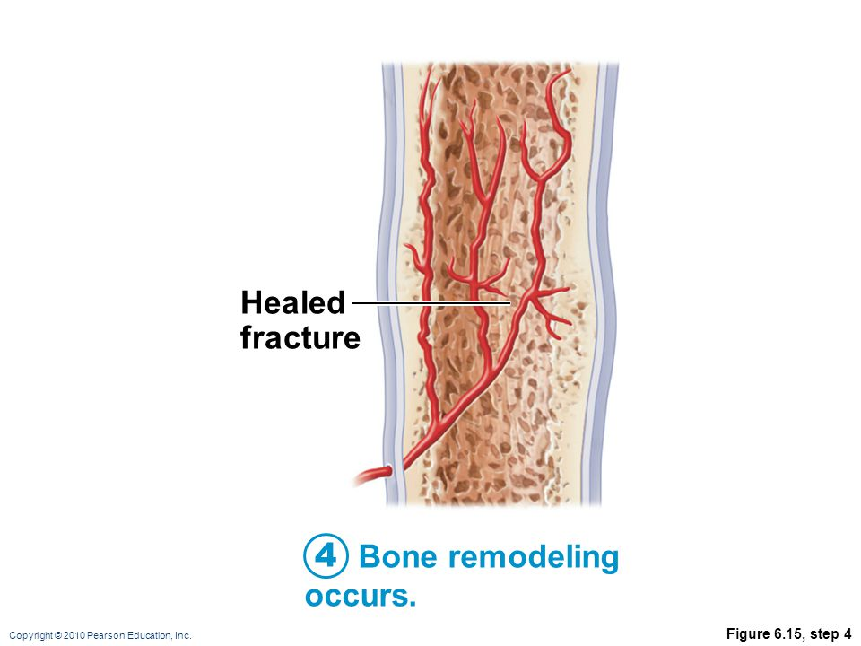 Healed fracture 4 Bone remodeling occurs. Figure 6.15, step 4
