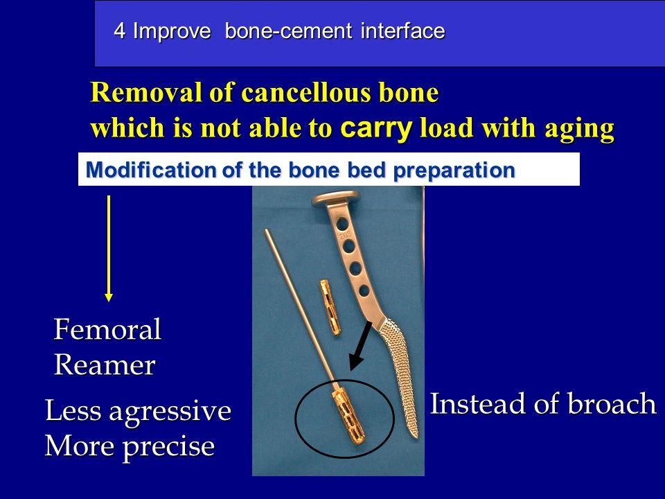 4 Improve bone-cement interface