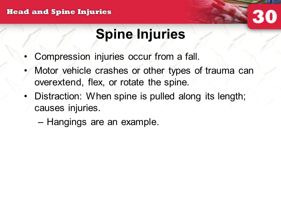 Spine Injuries Compression injuries occur from a fall.