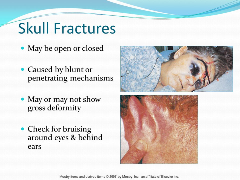 Skull Fractures May be open or closed