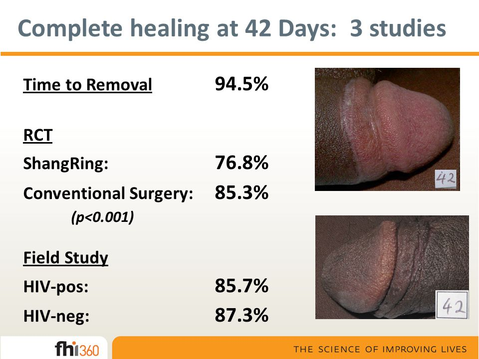 Complete healing at 42 Days: 3 studies