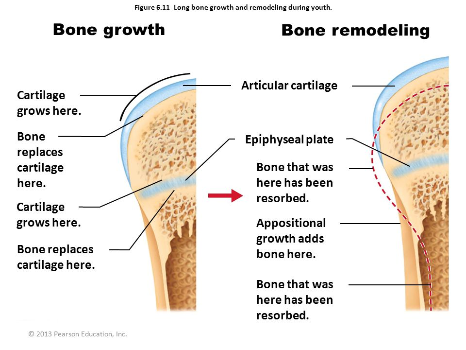 Figure 6.11 Long bone growth and remodeling during youth.