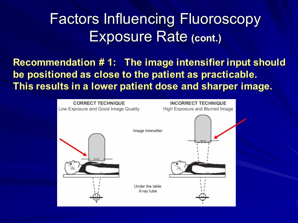 Factors Influencing Fluoroscopy Exposure Rate (cont.)