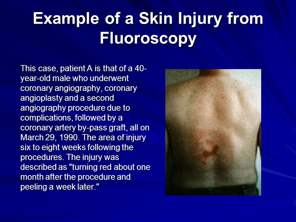 Example of a Skin Injury from Fluoroscopy