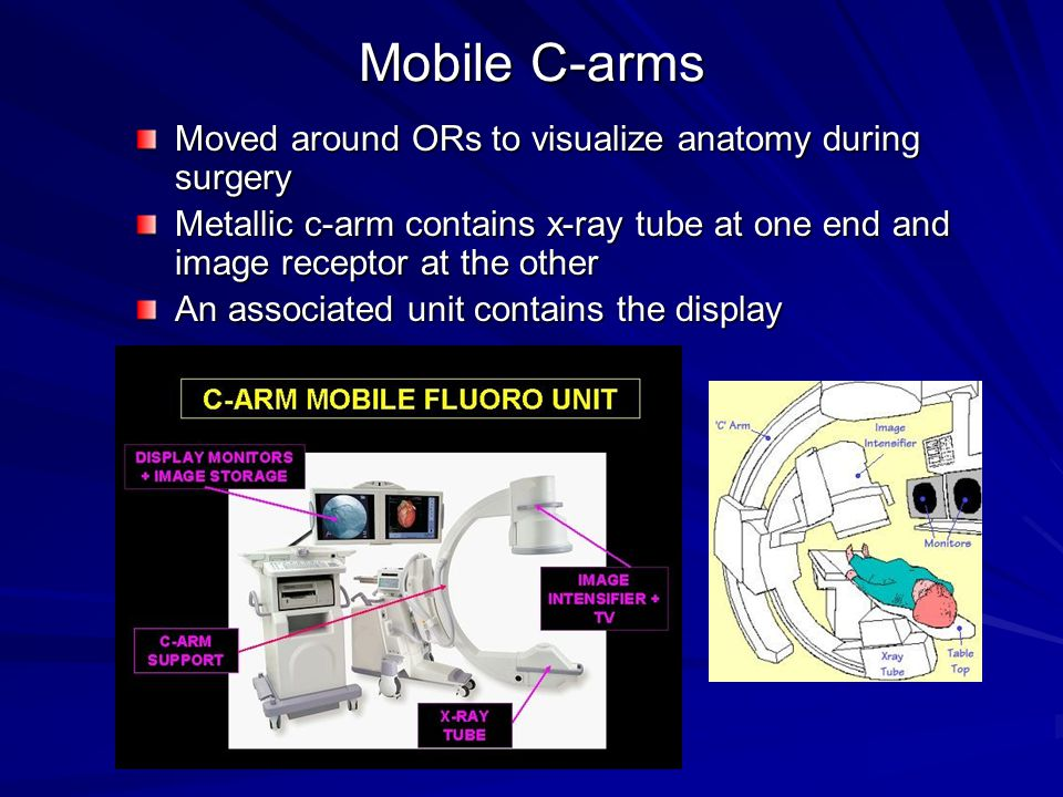 Mobile C-arms Moved around ORs to visualize anatomy during surgery