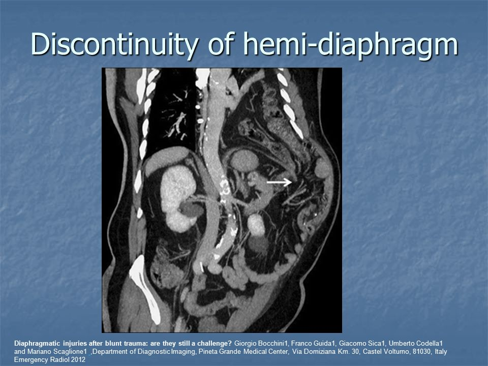 Discontinuity of hemi-diaphragm