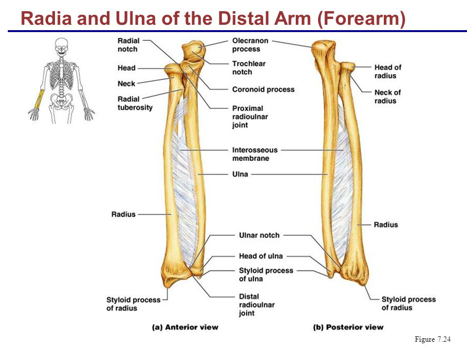 Radia and Ulna of the Distal Arm (Forearm)