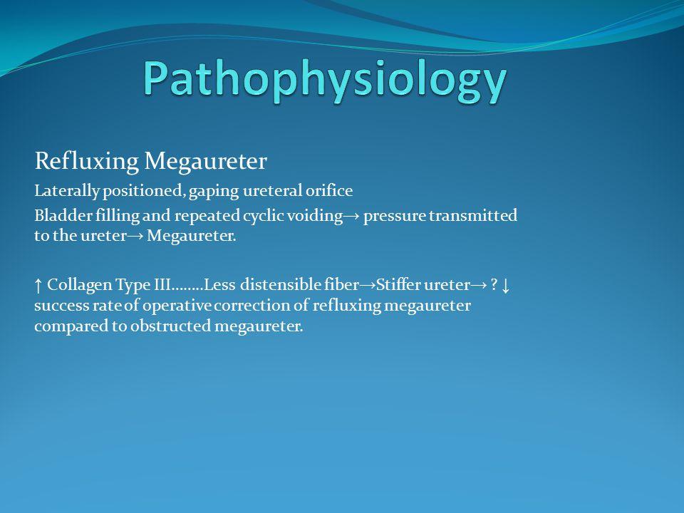 Pathophysiology Refluxing Megaureter