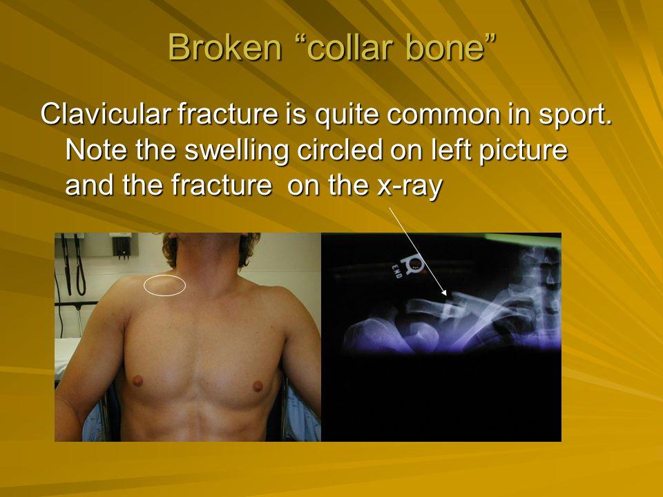 Broken collar bone Clavicular fracture is quite common in sport.
