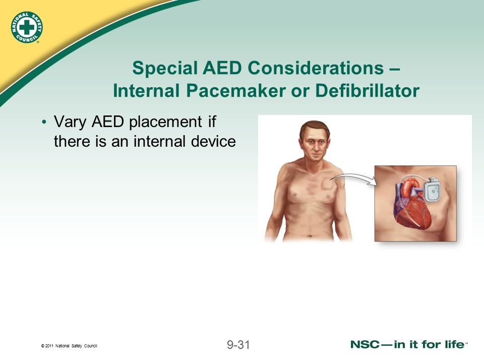 Special AED Considerations – Internal Pacemaker or Defibrillator