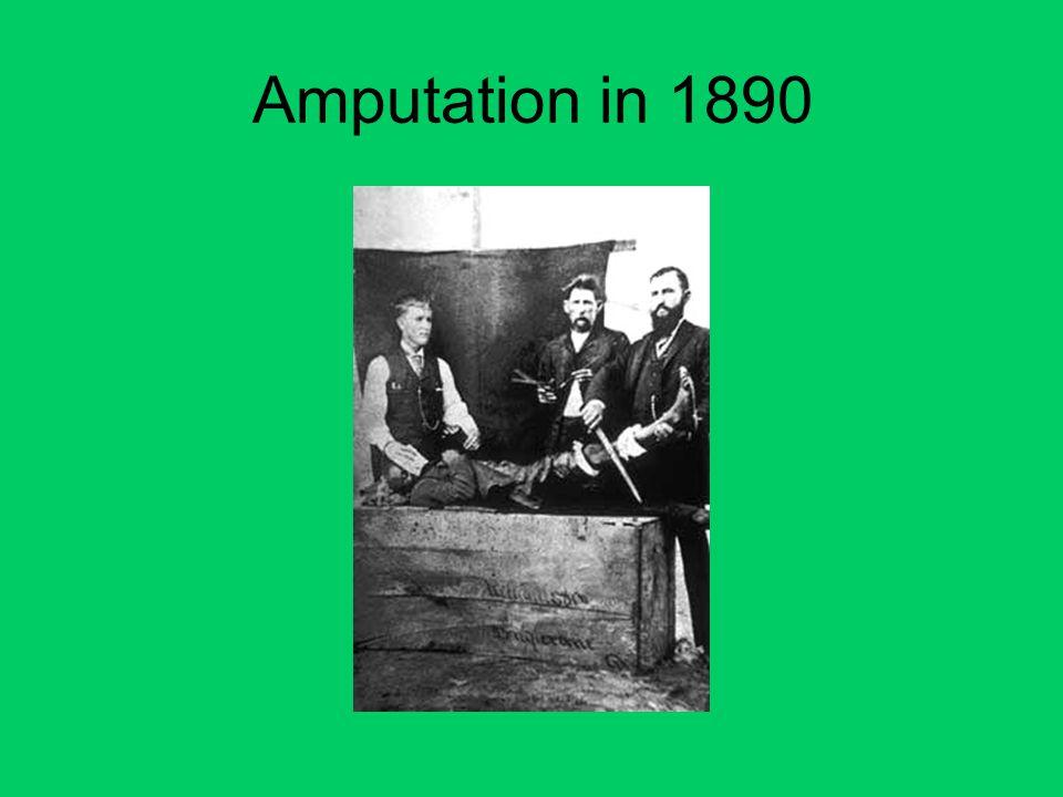Amputation in 1890