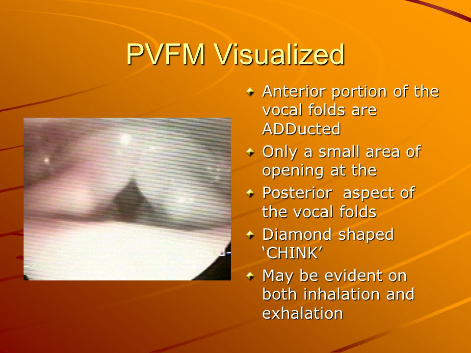 PVFM Visualized Anterior portion of the vocal folds are ADDucted