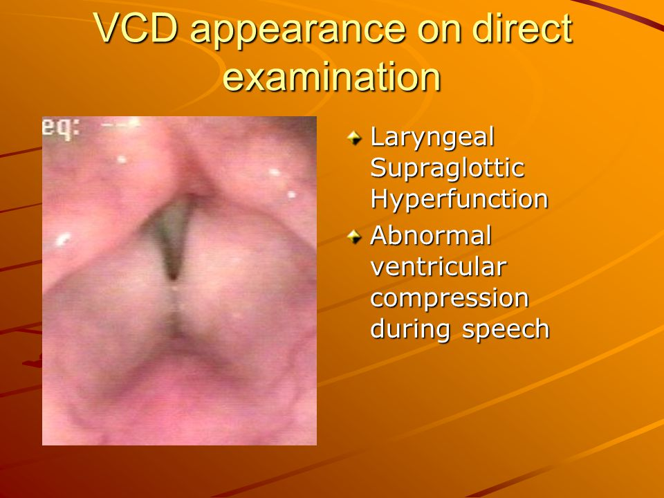 VCD appearance on direct examination