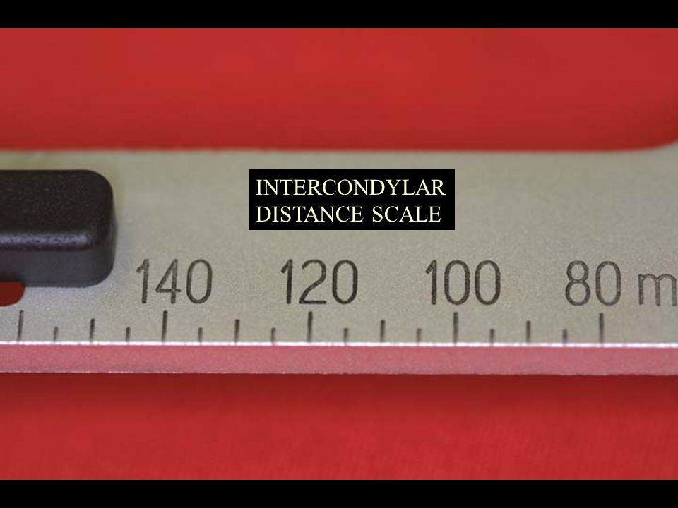 INTERCONDYLAR DISTANCE SCALE