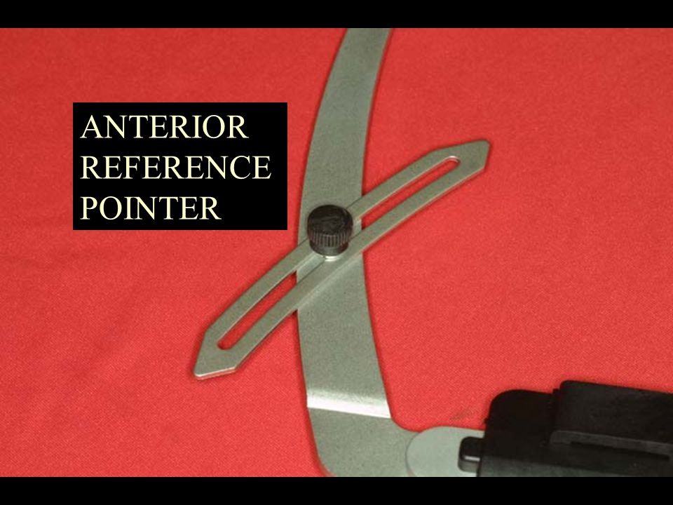 ANTERIOR REFERENCE POINTER