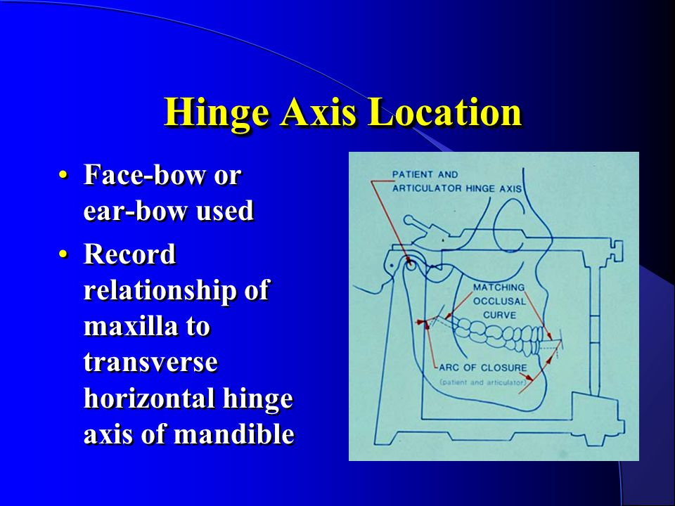 Hinge Axis Location Face-bow or ear-bow used