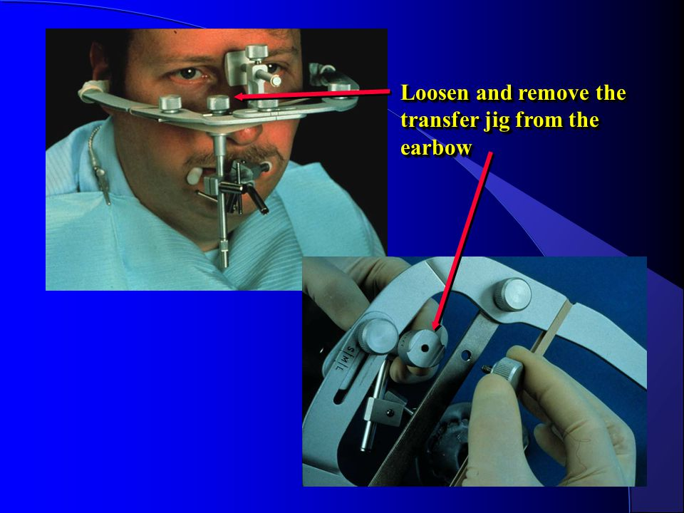 Loosen and remove the transfer jig from the earbow