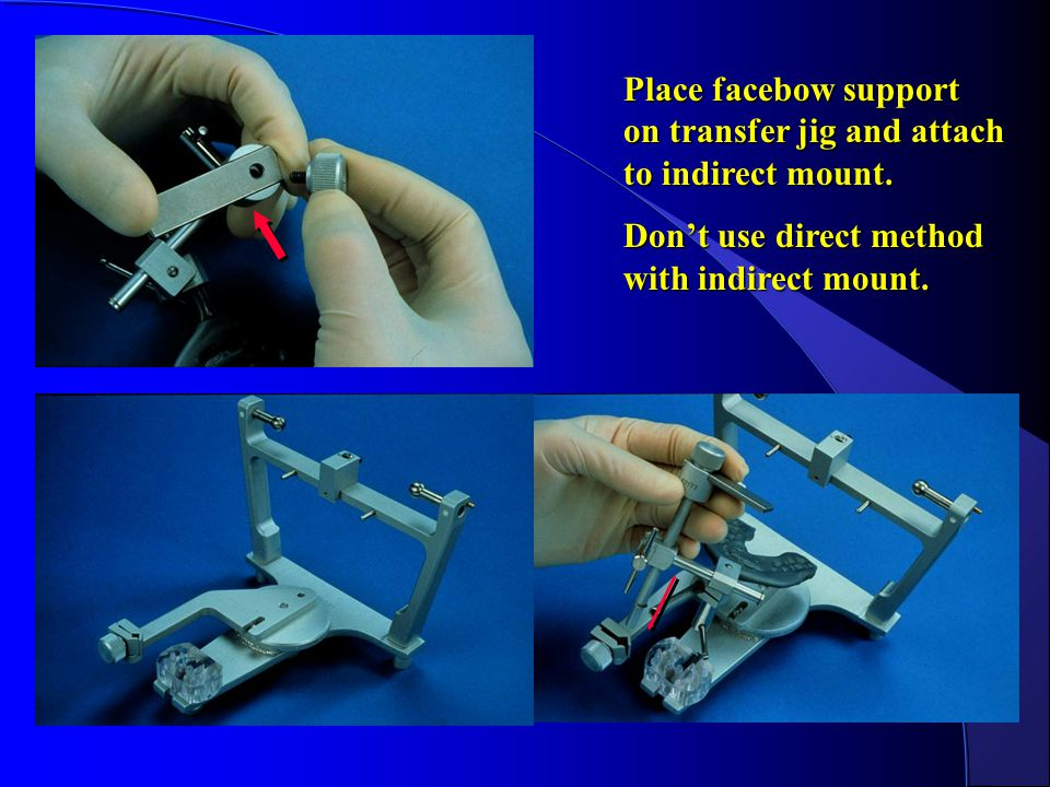 Place facebow support on transfer jig and attach to indirect mount.