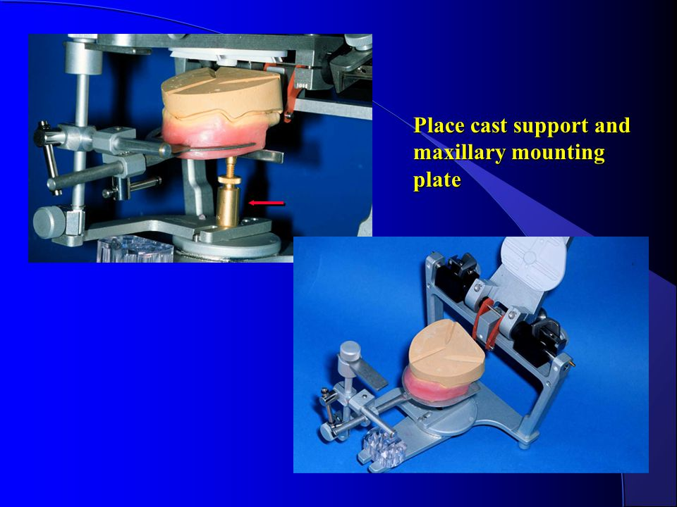 Place cast support and maxillary mounting plate