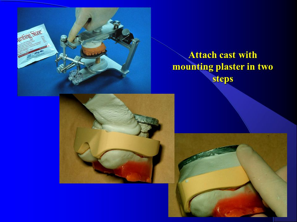 Attach cast with mounting plaster in two steps