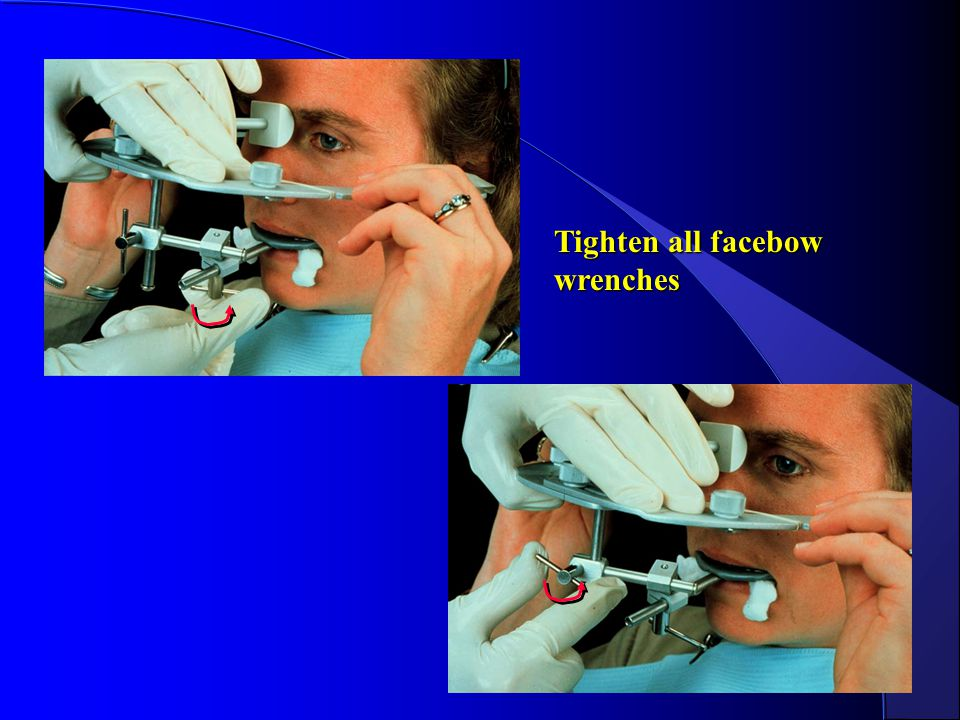 Tighten all facebow wrenches