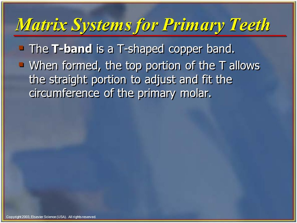 Matrix Systems for Primary Teeth