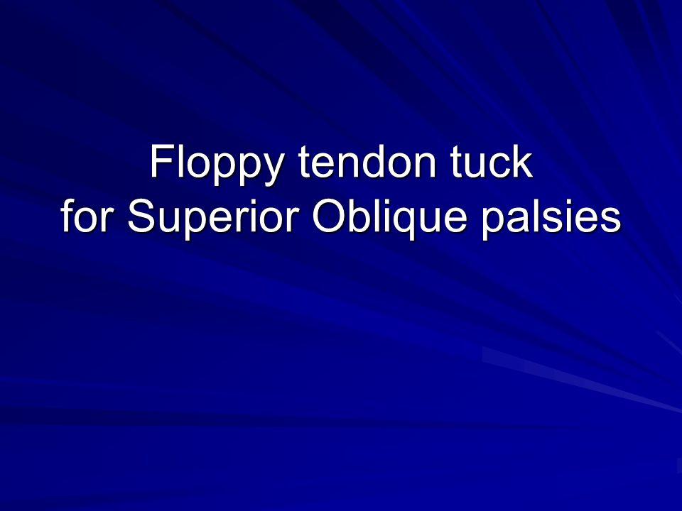 Floppy tendon tuck for Superior Oblique palsies