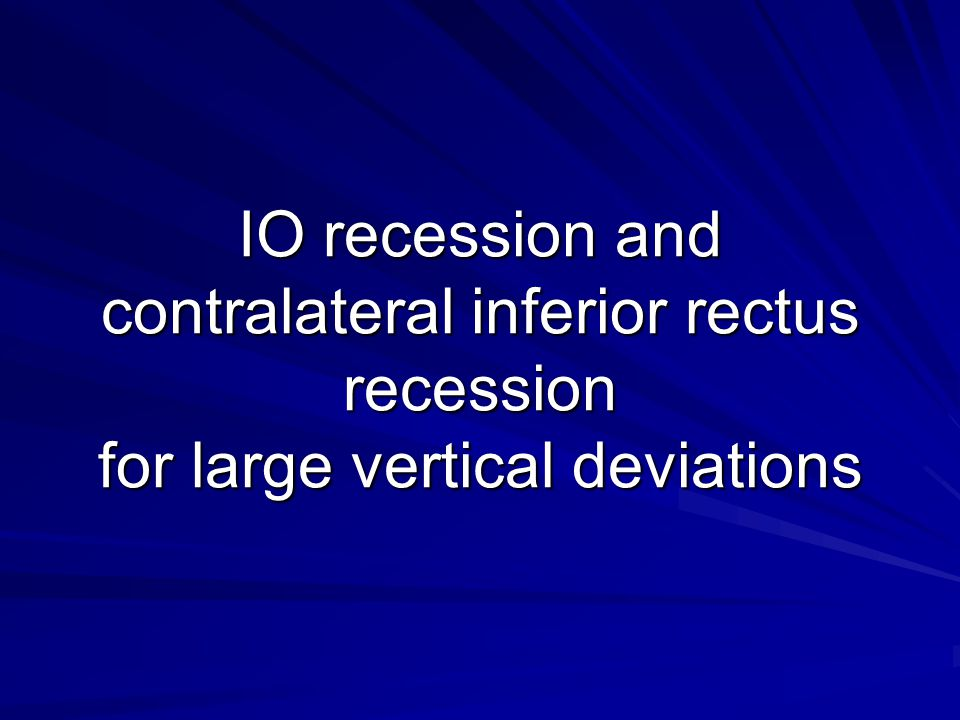 IO recession and contralateral inferior rectus recession for large vertical deviations