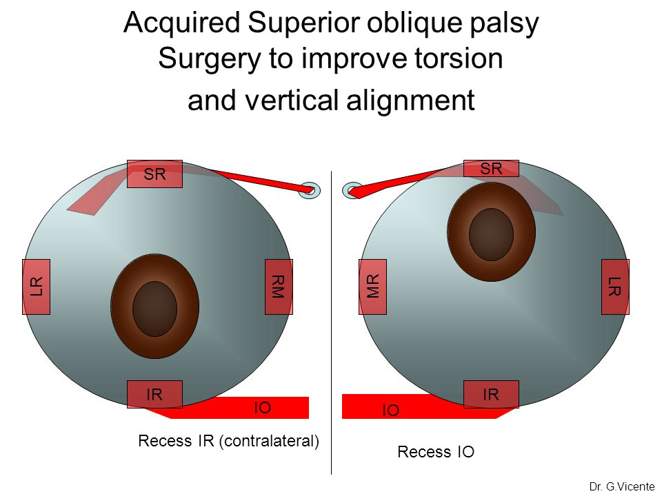 Acquired Superior oblique palsy Surgery to improve torsion and vertical alignment