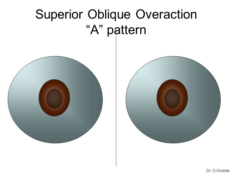 Superior Oblique Overaction A pattern