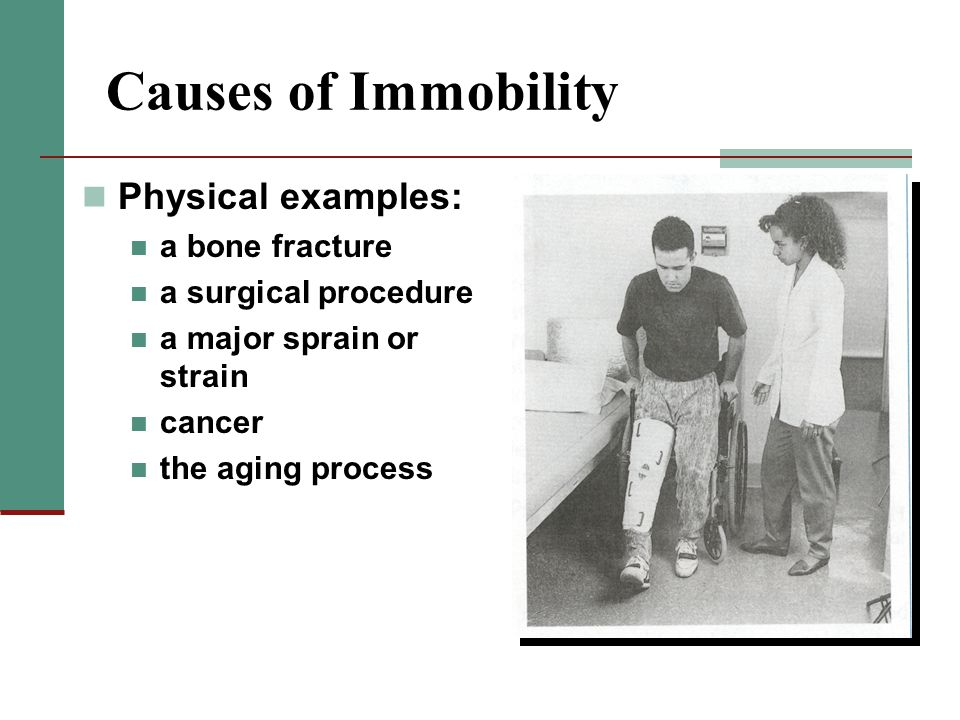 Causes of Immobility Physical examples: a bone fracture