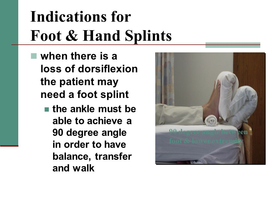 Indications for Foot & Hand Splints