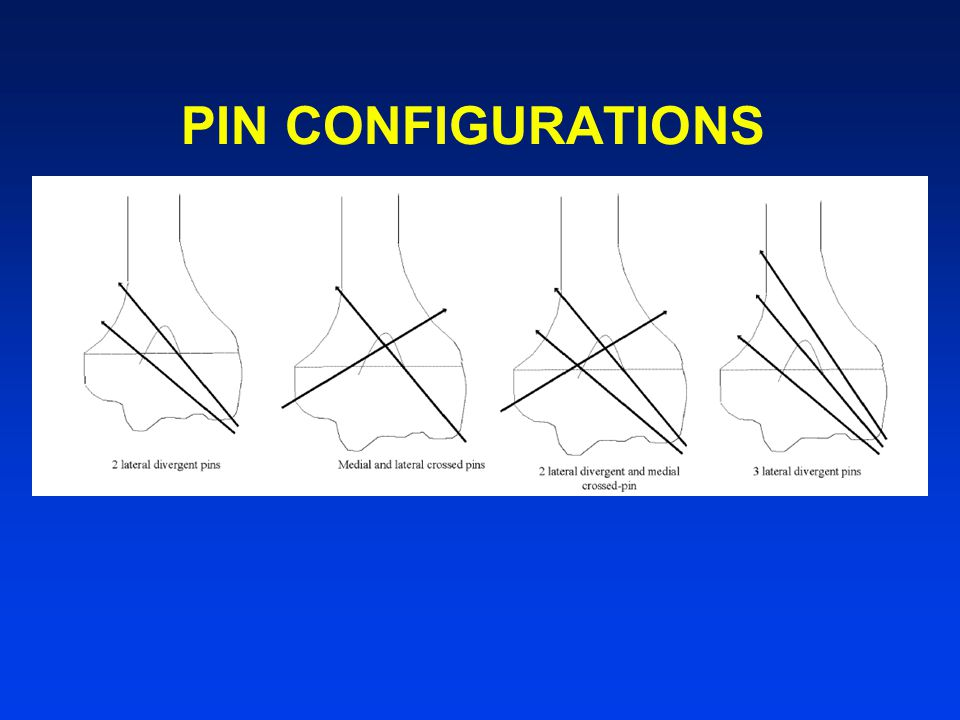 PIN CONFIGURATIONS
