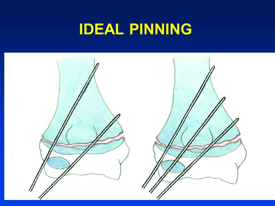 IDEAL PINNING
