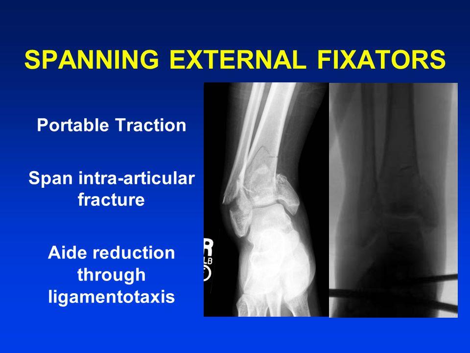 Spanning External Fixators