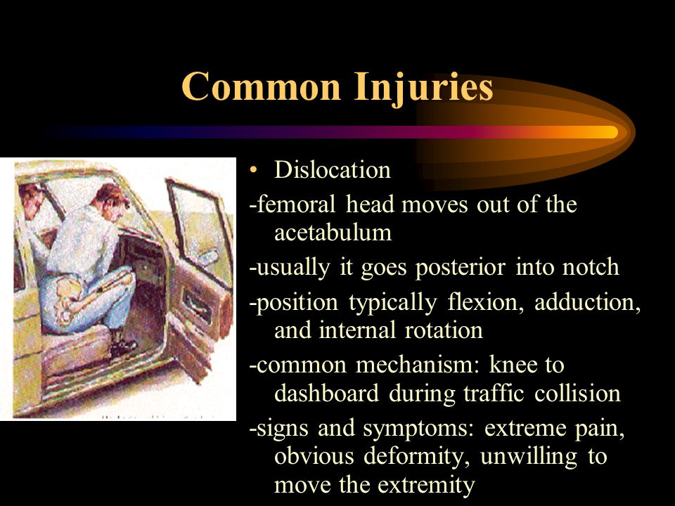 Common Injuries Dislocation -femoral head moves out of the acetabulum