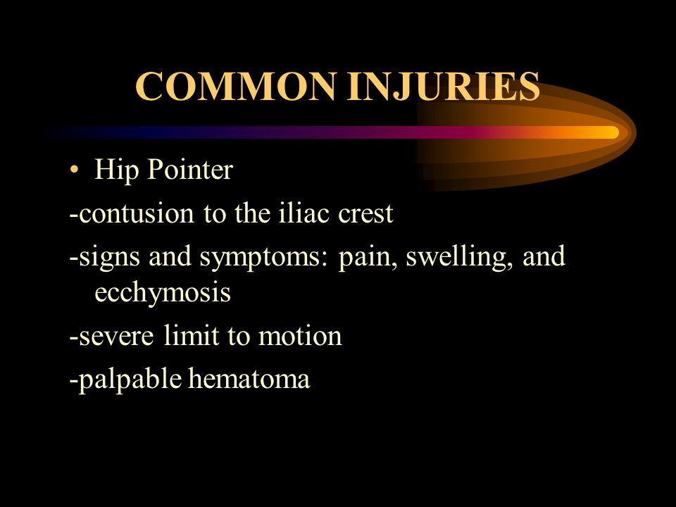 COMMON INJURIES Hip Pointer -contusion to the iliac crest