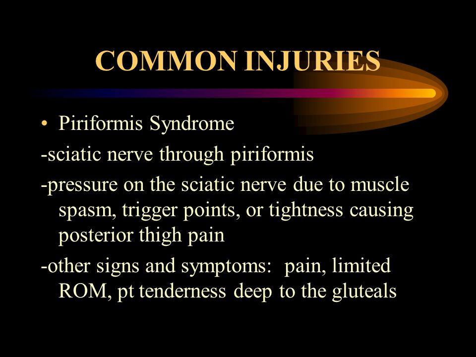 COMMON INJURIES Piriformis Syndrome -sciatic nerve through piriformis