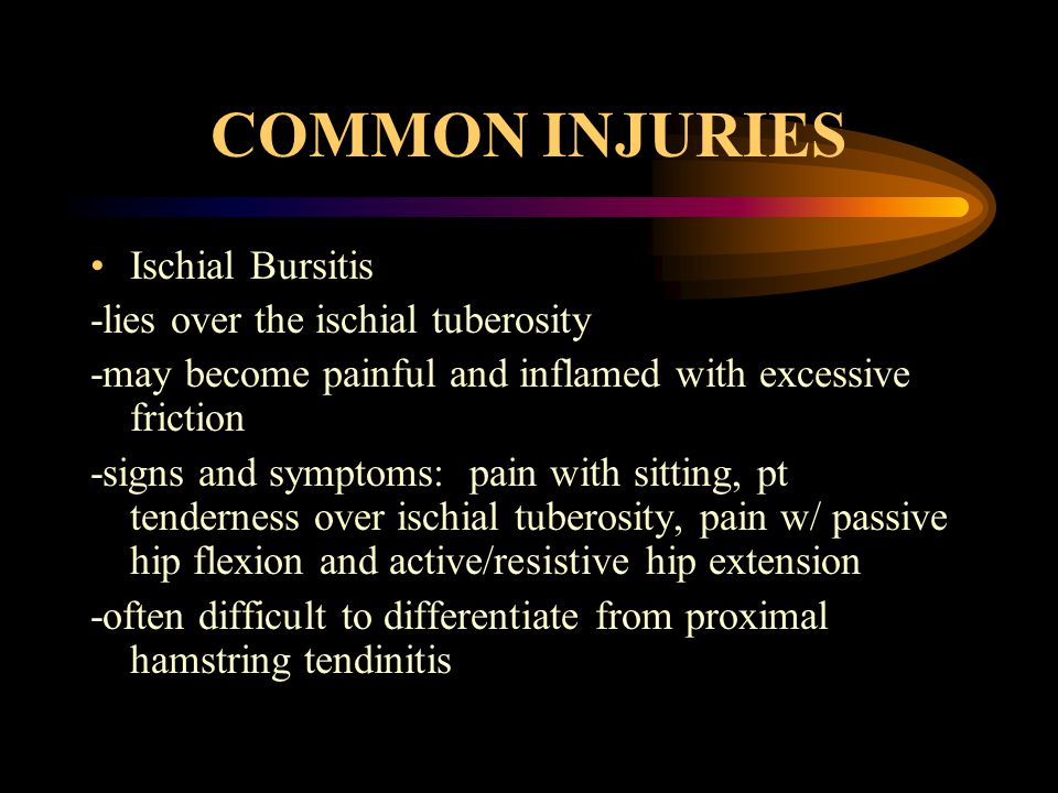 COMMON INJURIES Ischial Bursitis -lies over the ischial tuberosity