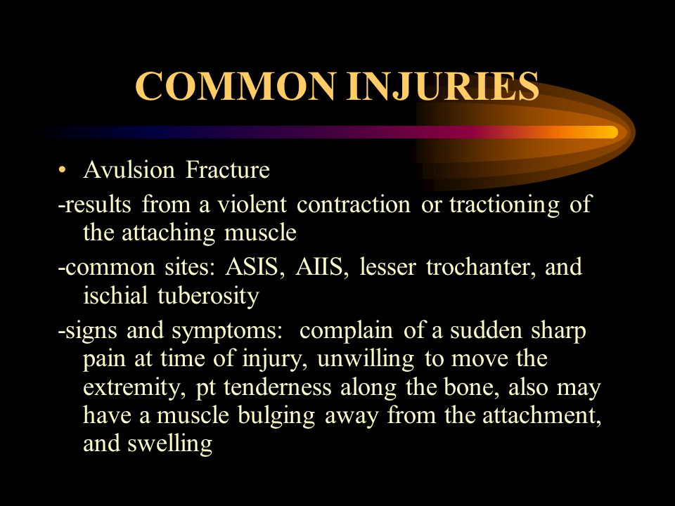 COMMON INJURIES Avulsion Fracture