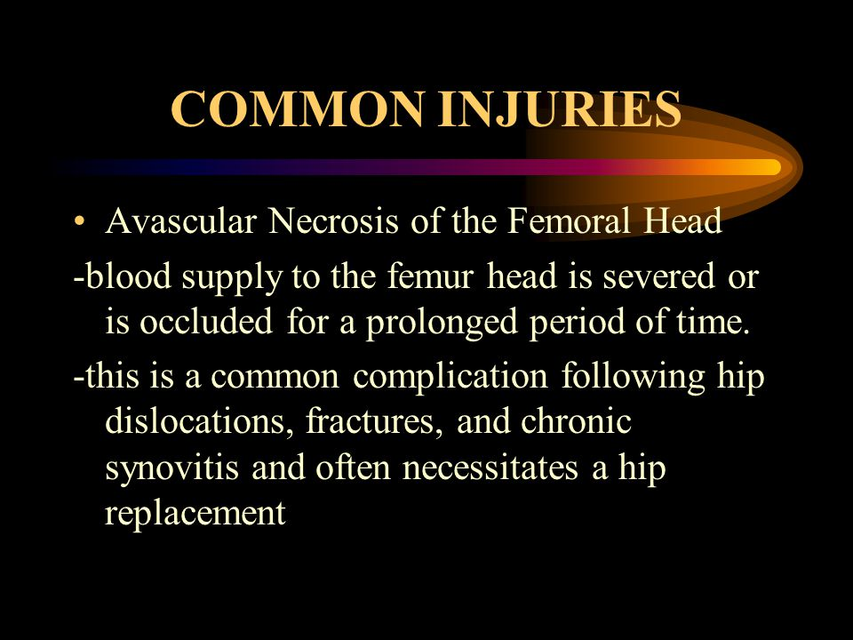 COMMON INJURIES Avascular Necrosis of the Femoral Head