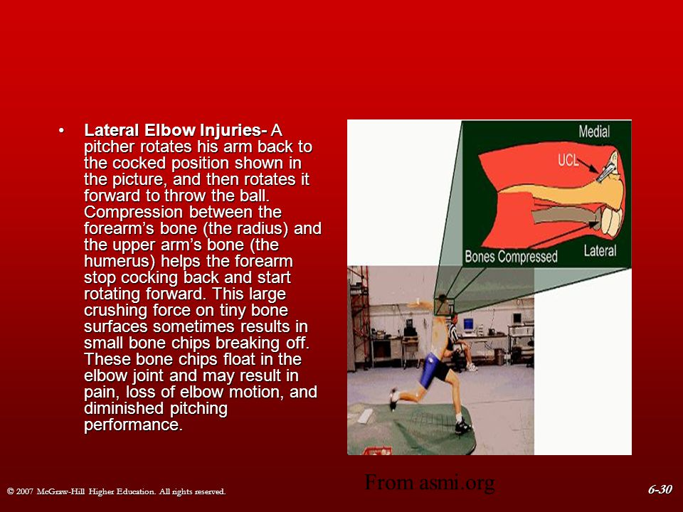 Lateral Elbow Injuries- A pitcher rotates his arm back to the cocked position shown in the picture, and then rotates it forward to throw the ball. Compression between the forearm's bone (the radius) and the upper arm's bone (the humerus) helps the forearm stop cocking back and start rotating forward. This large crushing force on tiny bone surfaces sometimes results in small bone chips breaking off. These bone chips float in the elbow joint and may result in pain, loss of elbow motion, and diminished pitching performance.