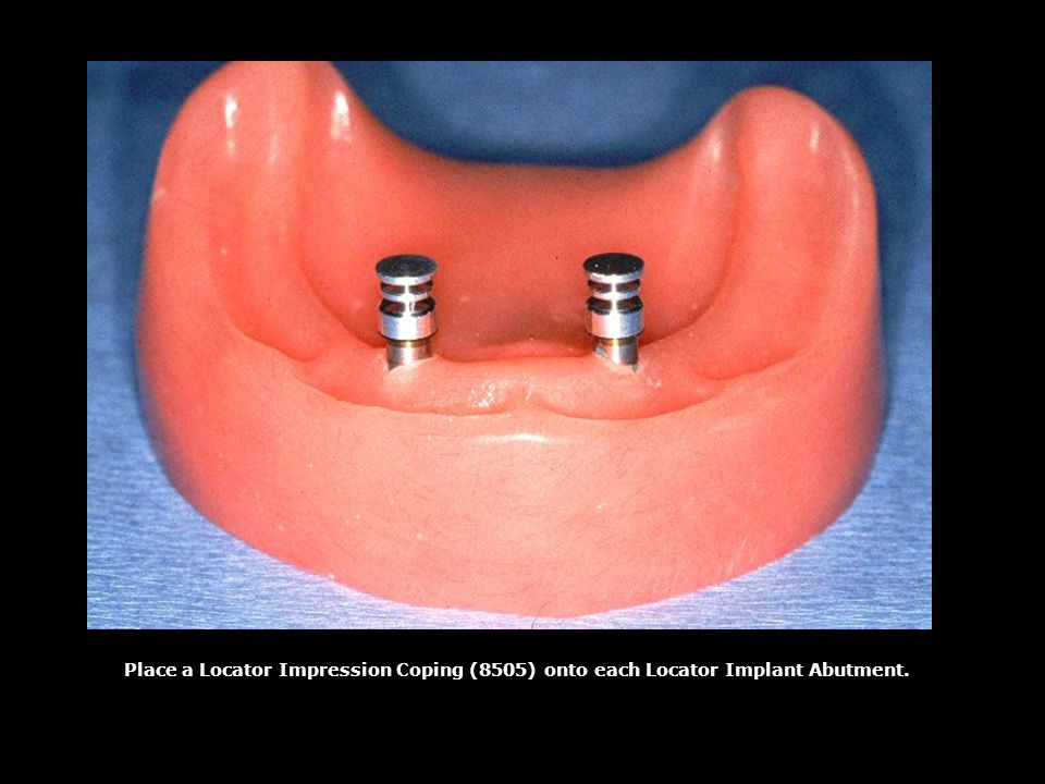 Place a Locator Impression Coping (8505) onto each Locator Implant Abutment.