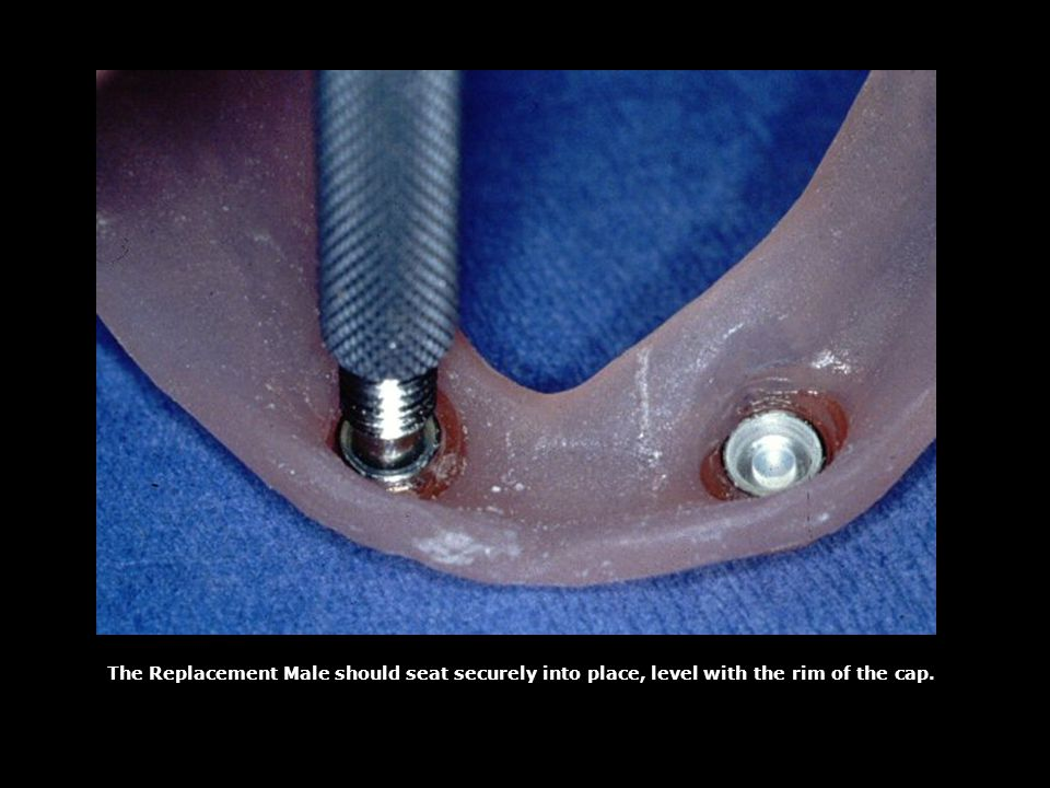 The Replacement Male should seat securely into place, level with the rim of the cap.