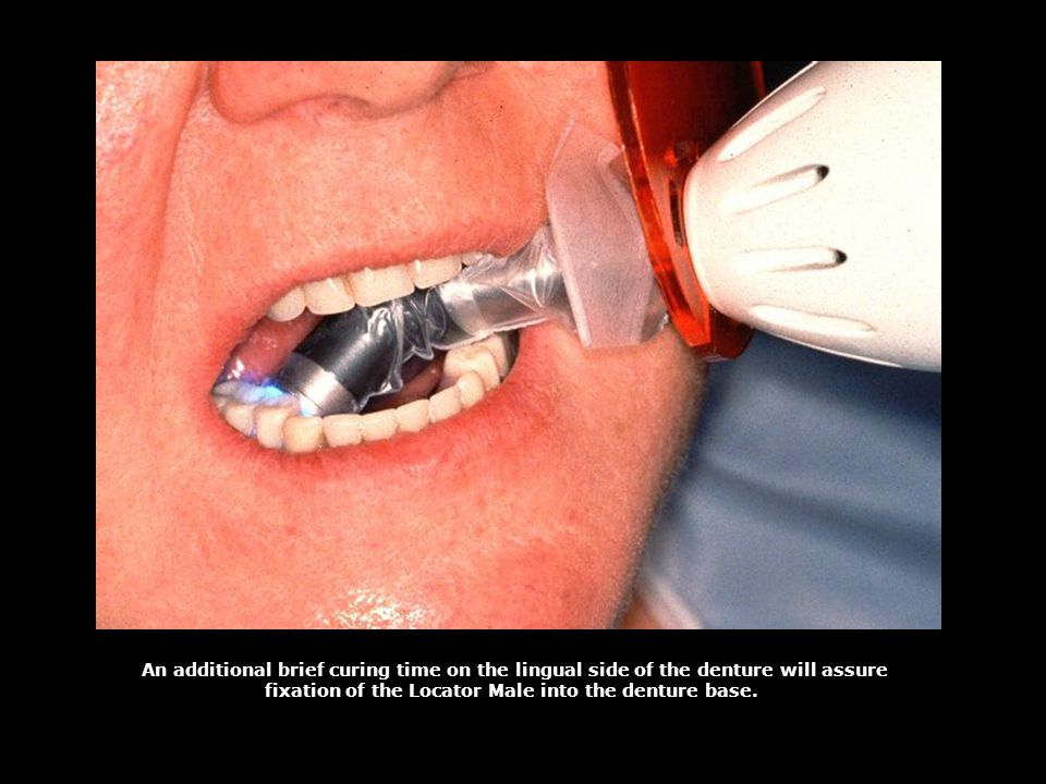 fixation of the Locator Male into the denture base.
