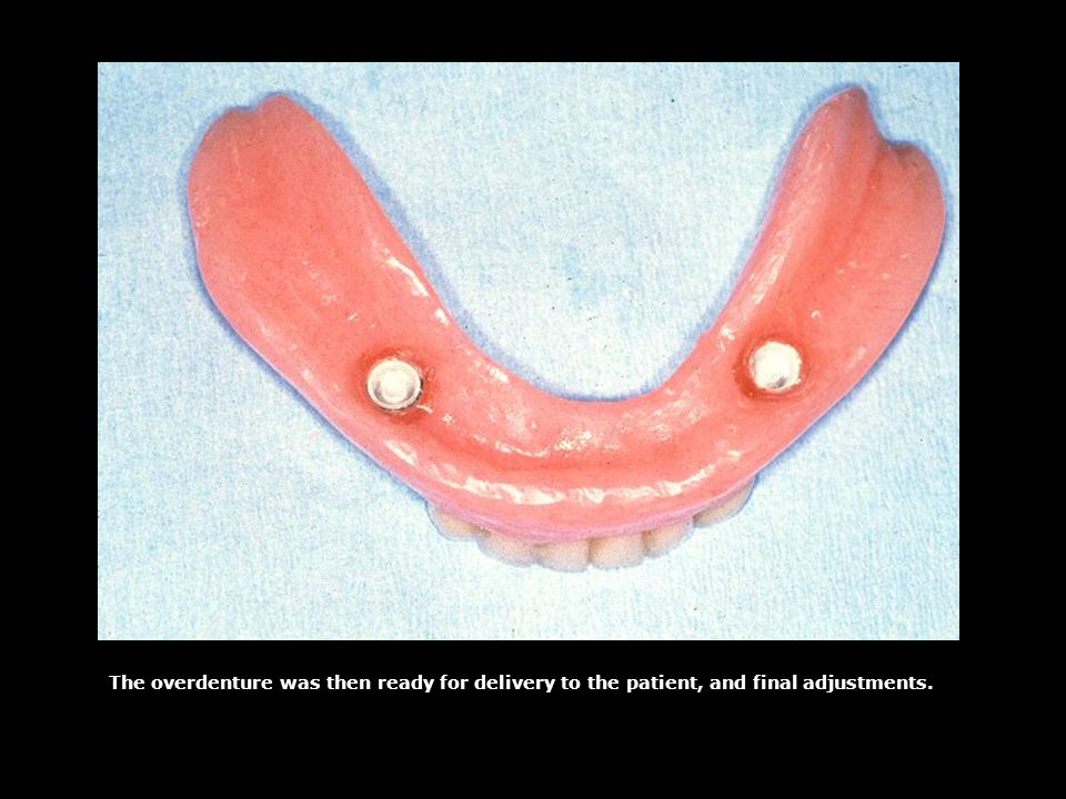 The overdenture was then ready for delivery to the patient, and final adjustments.