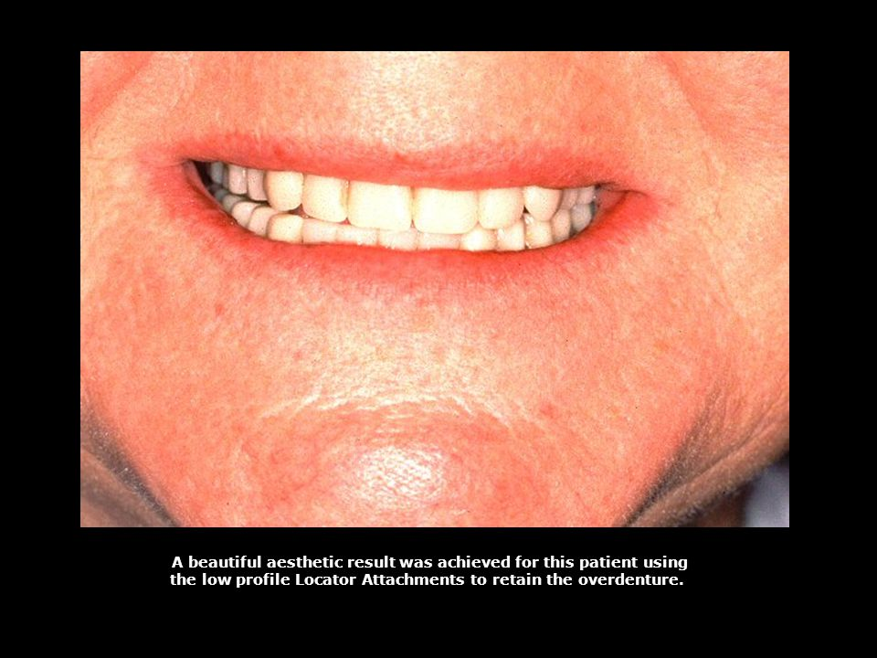 A beautiful aesthetic result was achieved for this patient using