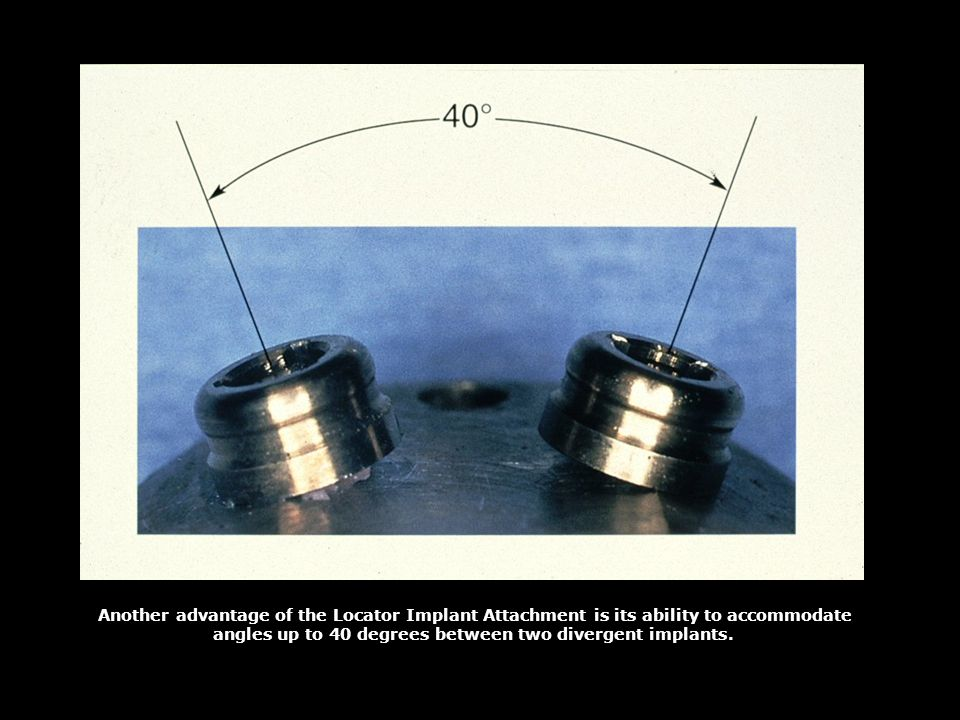 angles up to 40 degrees between two divergent implants.